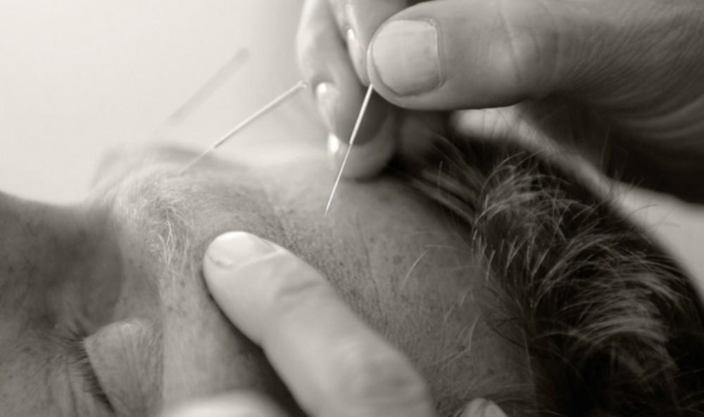 Akupunktur_JEs3694_700